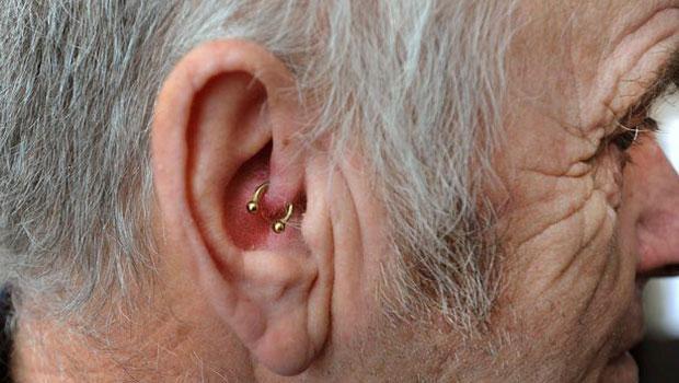 Kokëdhimbja 50 vjeçare hiqet me një unazë në vesh