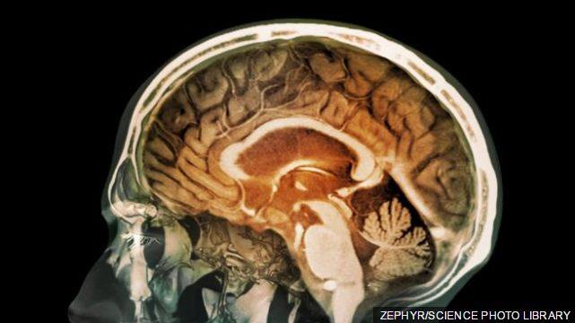 Grimca toksike të ndotjes së ajrit gjenden në trurin e njeriut