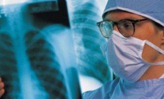 8 raste të të prekurve nga tuberkulozi në Durrës