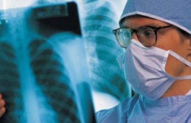Kosova me numrin më të madh të të prekurve nga tuberkulozi në Evropë