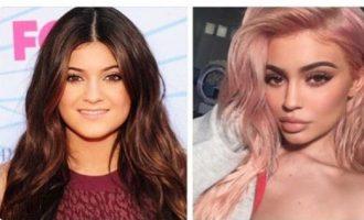 Plot shaka për operacionet plastike të Kylie Jenner