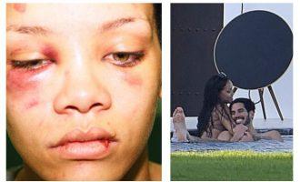 Një histori e re dashurie pas traumës me Chris Brown