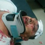 Pamje nga rrahja e gazetarit shqiptar