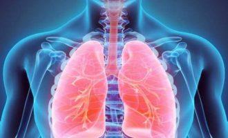 Statistikë e trishtë: 700 kosovarë sëmuren për çdo vit nga tuberkulozi
