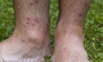 Infektime nga pleshtat në Gjilan